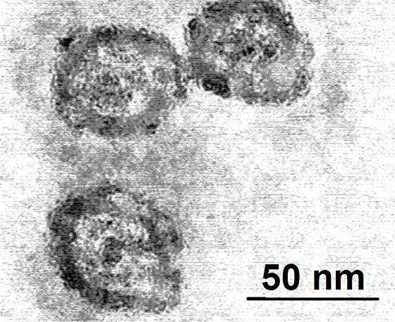 Le virus de l'hépatite C vu au microscope électronique. © PhD Dre / Licence Creative Commons