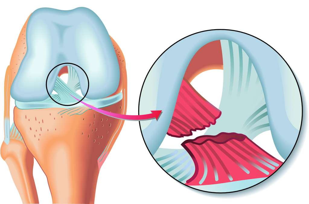 Rupture du ligament croisé antérieur (LCA). © rob3000, Adobe Stock