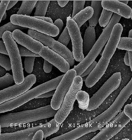 Une culture pure d'Escherichia coli : vue au microscope électronique à balayage. © Domaine public