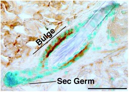 Chez un follicule de souris, la protéine CD34 est exprimée dans le renflement (bulge), mais pas dans les cellules progénitrices (sec germ), d'après l'immunomarquage (en marron). © Journal of Clinical Investigation