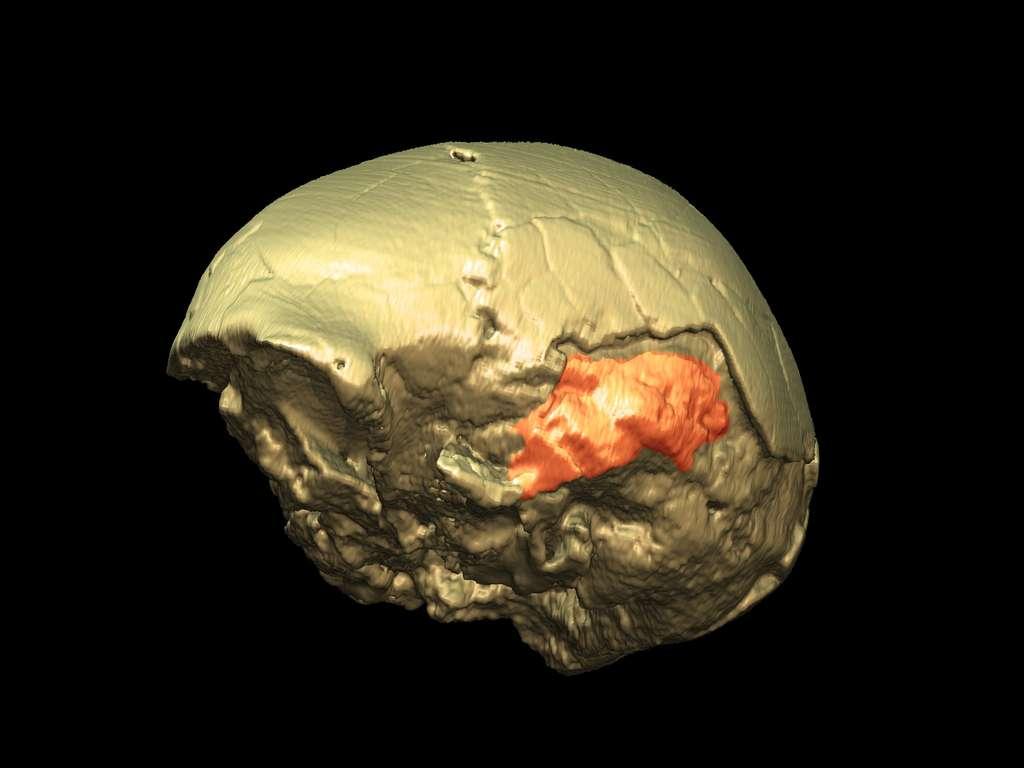 Reconstitution tridimensionnelle d'une boîte crânienne d'enfant