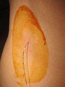 Péridurale. L'injection de l'anesthésique passe par un fin cathéter. © DR
