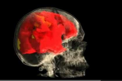 L'IRM fonctionnelle permet de lire des images du cerveau, pas de traduire des pensées. © Barry R. Komisaruk et al./YouTube
