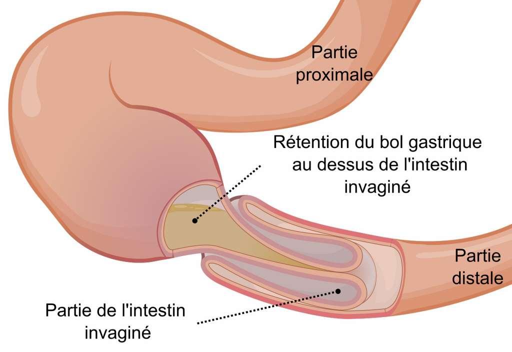 Schéma d'une invagination intestinale : une partie de l'intestin se replie en doigt de gant dans la zone sous-jacente. © Orem, CC by-sa 3.0