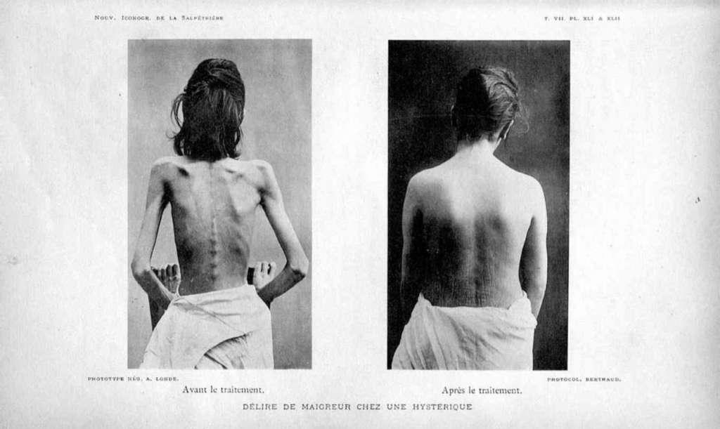 Photo d'une patiente souffrant d'anorexie mentale en 1894. © Nouvelle Iconographie de la Salpêtrière, Galica bnf, p. 328
