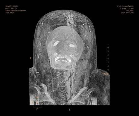 Même le scarcophage de la momie ne peut la dissimuler au regard perçant de ce nouveau genre de scanner qu'est le Brilliance iCT. Crédit : Anna Ressman/Oriental Institute/University of Chicago
