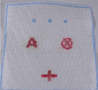 Voici un exemple de ce que le papier affiche. Ici, l'échantillon sanguin appartient à une personne A+. Le O est barré d'une croix. © Monach University
