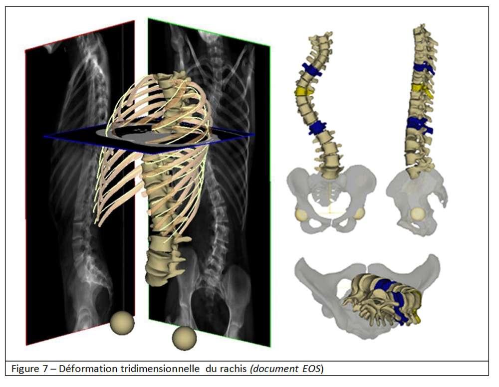 La scoliose est une déformation tridimensionnelle du rachis. © Document EOS. Tous droits réservés/Reproduction interdite