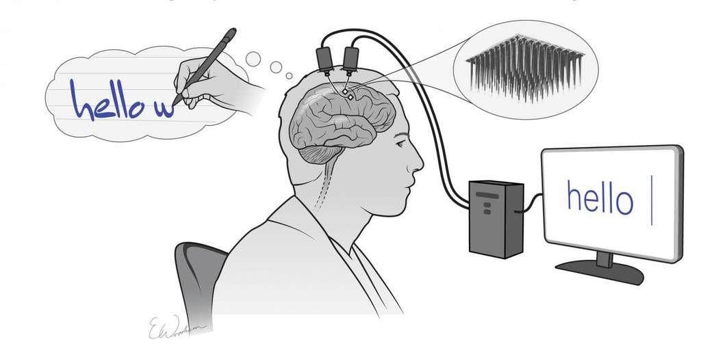 Deux réseaux d'électrodes implantés enregistrent l'activité cérébrale produite en pensant à l'écriture de lettres. Ces informations sont ensuite collectées et traitées en temps réel par un ordinateur, qui convertit ces données en mots sur un écran. © Courtesy of Shenoy lab & Erika Woodrum