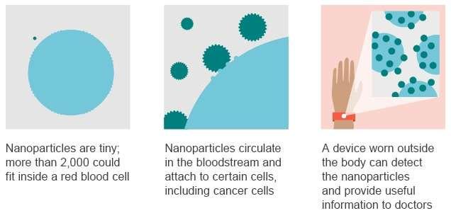 Voici de manière schématisée le principe de fonctionnement du projet Nanoparticle Platform de Google. Les nanoparticules dont il est question sont extrêmement petites, à tel point que 2.000 d'entre elles pourraient tenir dans un globule rouge. Elles circuleraient dans le flux sanguin et se fixeraient à certaines cellules, notamment des cellules cancéreuses. Un bracelet électronique spécial pourrait les détecter et les rassembler en un point pour collecter les données. © Google