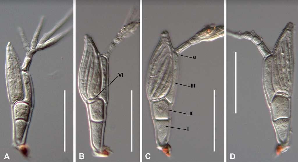 Troglomyces twitteri au microscope. © Ana Sofia Reboleira, Musée d'histoire naturelle du Danemark