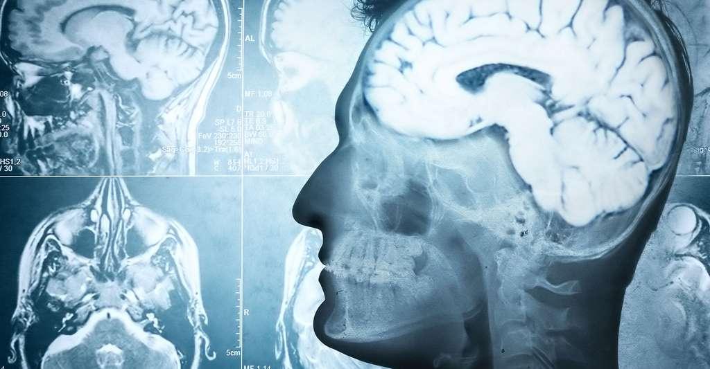 Comment détecter la maladie de Parkinson ? Quels en sont les symptômes ? © Triff, Shutterstock