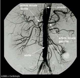 Observation de la paroi des artères par artériographie. Source : http://www.e-cardiologie.com/