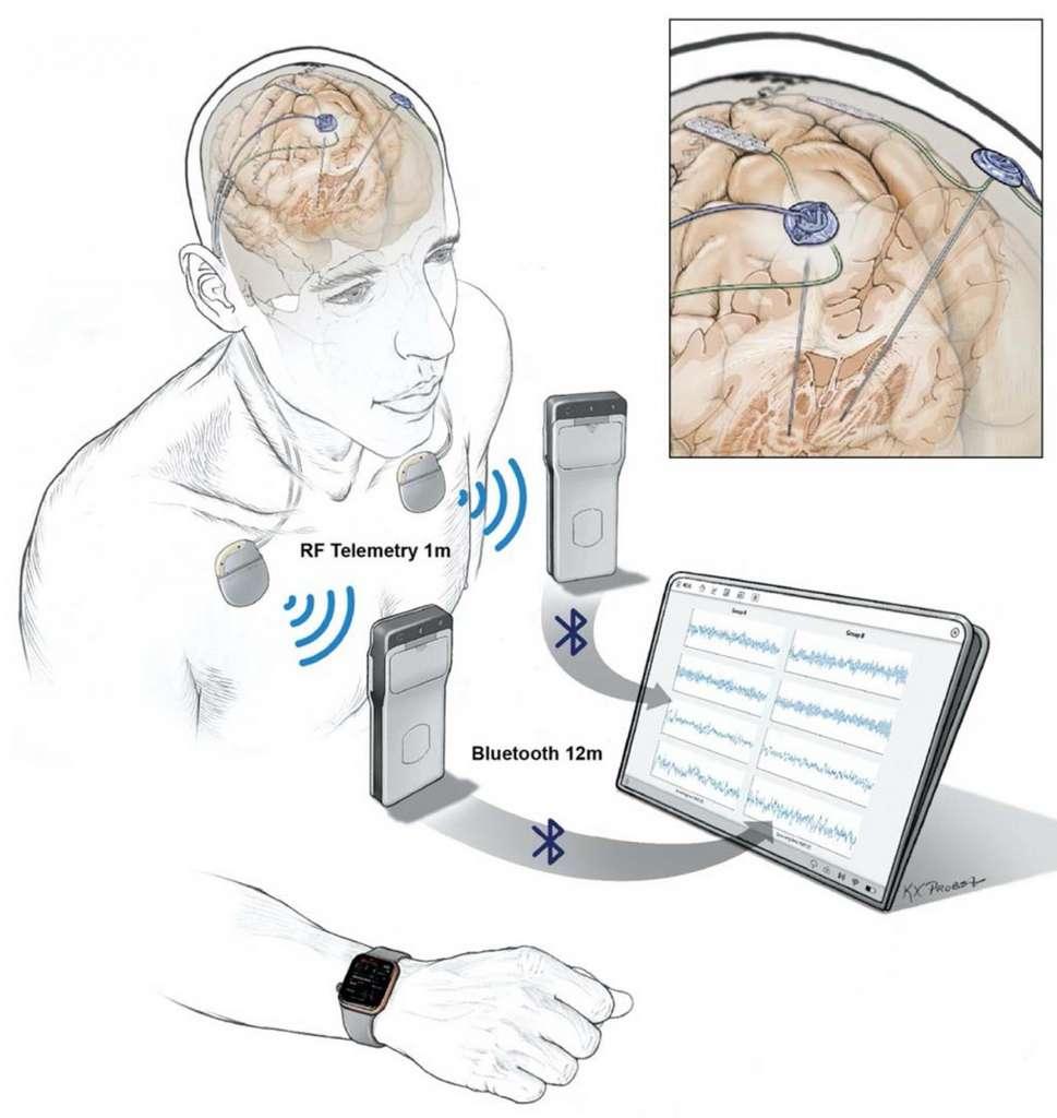 Des électrodes implantées dans le cerveau transmettent des données enregistrées à un dispositif de poche porté par un patient. Les données sont ensuite transférées sans fil sur une tablette, puis téléchargées vers le cloud via un serveur conforme HIPAA. © Courtesy of Starr lab, UCSF