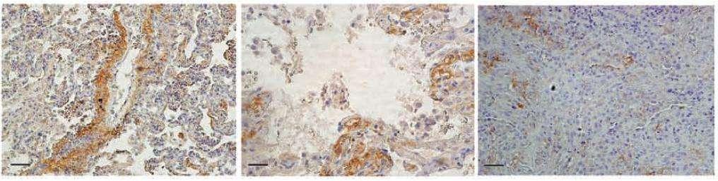 La protéine C4d (orange) est davantage retrouvée dans les poumons de malades infectés par la souche de grippe H1N1 de 2009 (les deux photos de gauche) que ceux du malade infecté par une grippe saisonnière (à droite). © Nature
