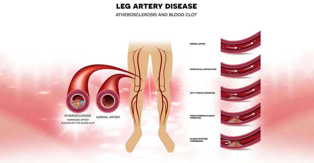 Artérite des membres inférieurs. © Tefi, Shutterstock