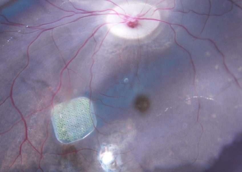 La rétine artificielle développée par Pixium Vision. © Serge Picaud, Inserm