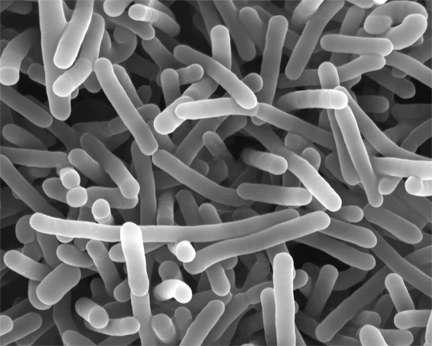 Listeria monocytogenes est une bactérie en forme de bâtonnet. Dans la plupart des cas, l'infection provient d'une source alimentaire contaminée. Chez un individu en bonne santé, elle ne crée généralement pas de problème, mais la bactérie se montre agressive pour les personnes immunodéprimées, et pour les fœtus quand elle est ingérée par la femme enceinte. © Penn state college of agricultural sciences, Flickr, cc by nc 2.0