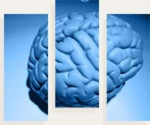 L'épilepsie présente plusieurs symptômes. © epileptogene.ca