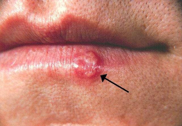 Il existe deux types de virus herpès simplex : le HSV-1 principalement responsable des herpès oraux faciaux, et le HSV-2 qui provoque majoritairement de l'herpès génital. © BernardBill5, Wikimedia Commons, cc by sa 3.0
