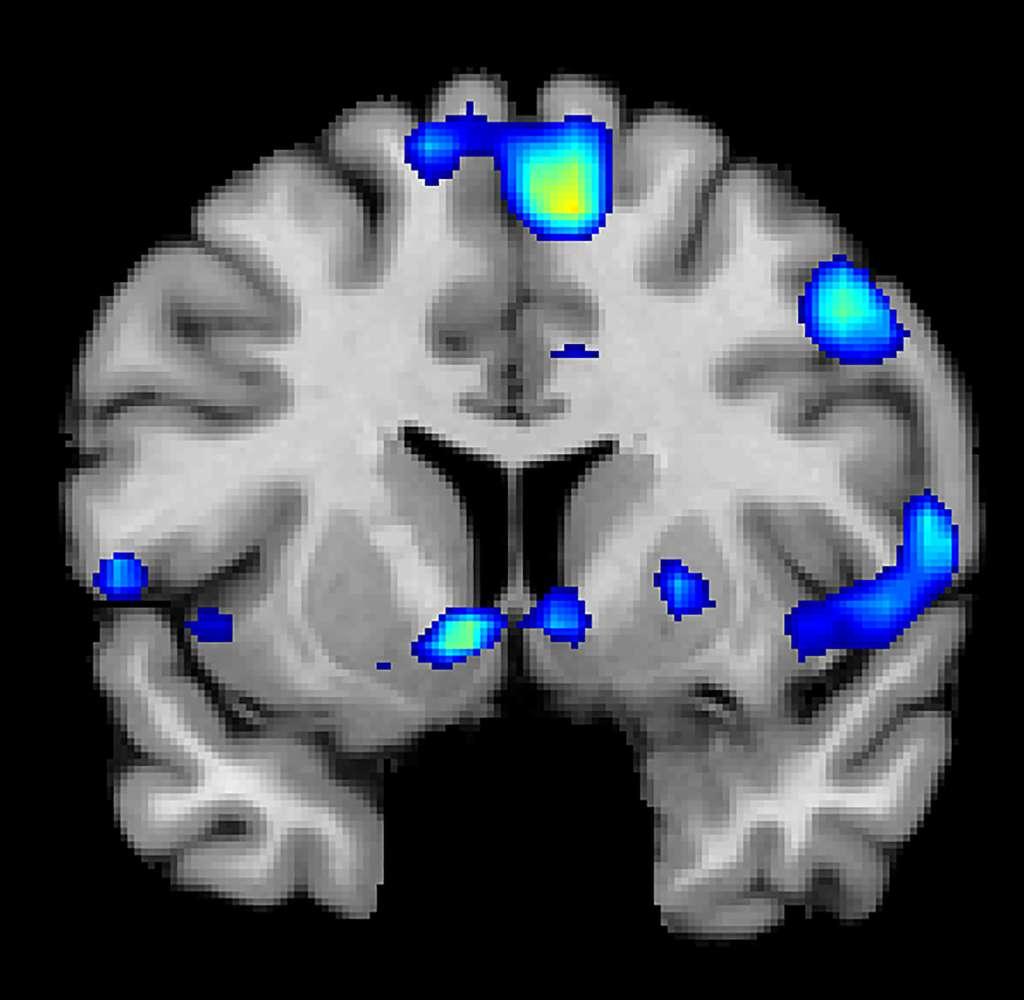 L'IRM fonctionnelle montre les régions du cerveau actives quand les participants font l'expérience de la spiritualité. © Jeffrey Anderson