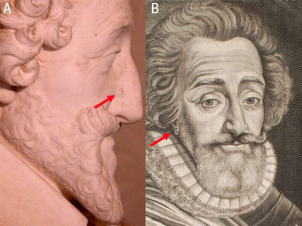 Le bon roi Henri avait une petite marque sur l'aile droite du nez, et le lobe de son oreille droite avait été percé, deux détails retrouvés sur la tête embaumée. © P. Charlier et al./BMJ