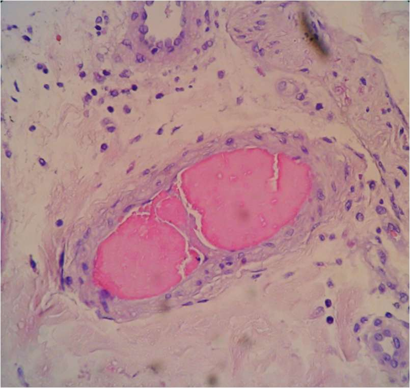 Un vaisseau sanguin de la peau entouré de cryoglobulines, des anticorps qui précipitent au froid. © Orivaldo Alves Barbosa et al., American Journal of Medical Case Reports, 2016