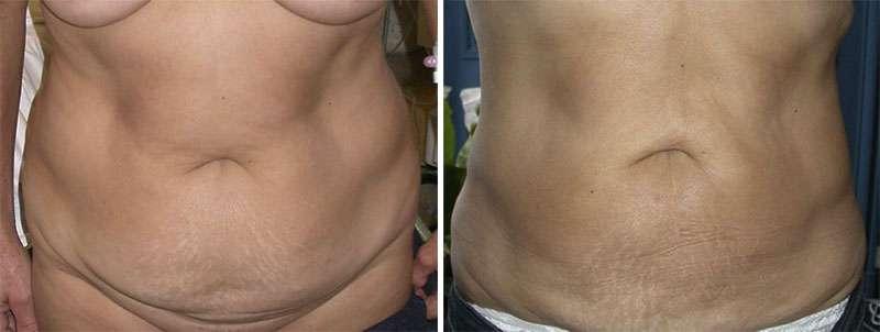 Liposuccion du ventre avant et après. © Dr Mitz, tous droits réservés
