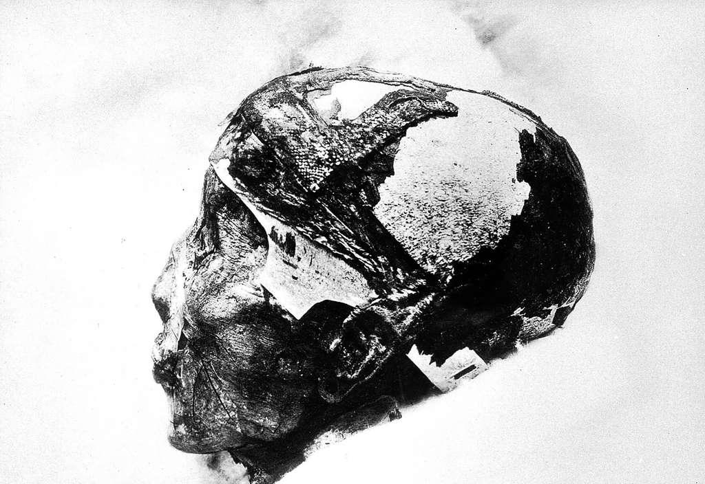图坦卡蒙木乃伊的头。  ©惠康收藏馆,Wikimedia Commons,CC-by-4.0