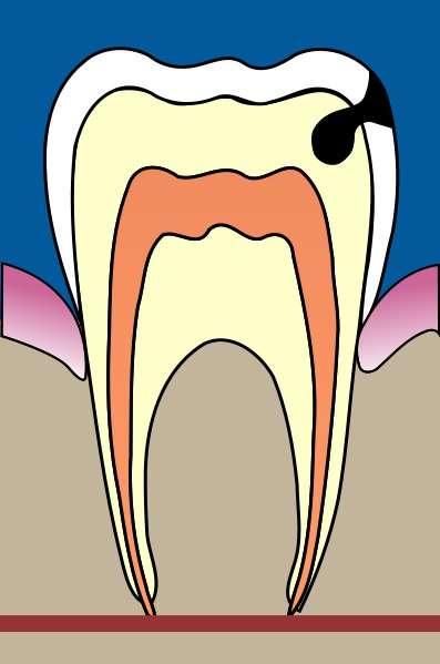 La carie attaque la dent en y faisant un trou. © Wikipedia, Licence Art libre