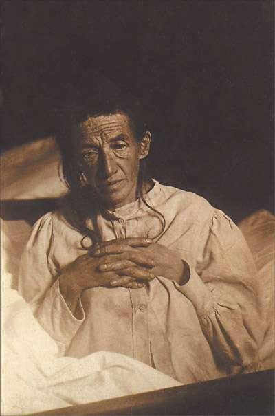 Auguste Deter, patiente du neurologue Aloïs Alzheimer, sur laquelle il décrivit la maladie neurodégénérative pour la première fois en 1906. © Wikimedia Commons, DP