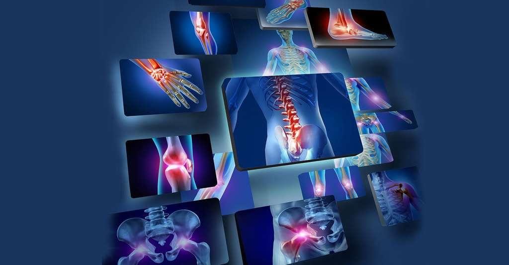 La fragilisation des os (ostéoporose) est un des effets de la ménopause, avec un plus grand risque de maladies cardiovasculaires. © Lightspring, Shutterstock