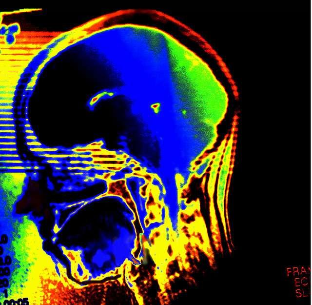 Dépression, schizophrénie... quelles sont les causes des maladies mentales ? © alles-schlumpf, Flickr CC by nc-sa 2.0
