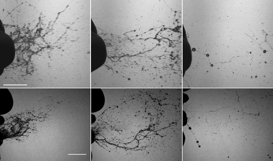 Quelques clichés réalisés à l'aide de caméras prenant entre 6.000 et 8.000 images par seconde. Ils illustrent le phénomène de fragmentation des fluides muco-salivaires pendant l'éternuement d'un sujet sain. On observe d'abord, très près de la bouche, la formation de sortes de flaques puis de filaments et enfin de gouttelettes. © Visualization of sneeze ejecta: steps of fluid fragmentation leading to respiratory droplets, de B. E. Scharfman, A. H. Techet, J. W. M. Bush, L. Bourouiba