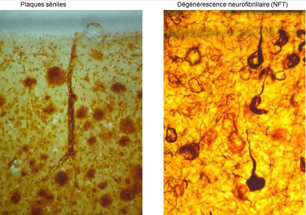 Les plaques séniles et la dégénérescence neurofibrillaire sont typiques d'un cerveau vieillissant. © DR