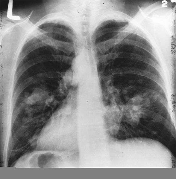 Les radiographies annuelles du thorax ne seraient pas efficaces pour réduire la mortalité due au cancer du poumon. Sur cette radio, les taches claires sur les poumons montrent un probable cancer du poumon. © Wikipédia DP