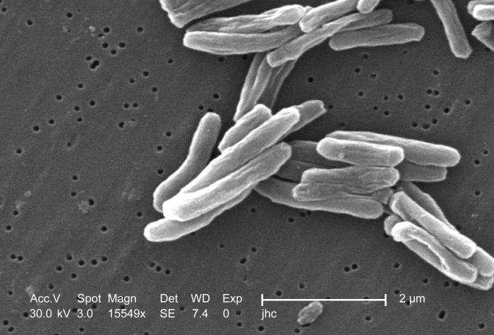Image de microscopie électronique de Mycobacterium tuberculosis, grossies 15.000 fois. M. tuberculosis est une bactérie à croissance très lente. © Janice Carr, Wikimedia Commons, cc by sa 3.0