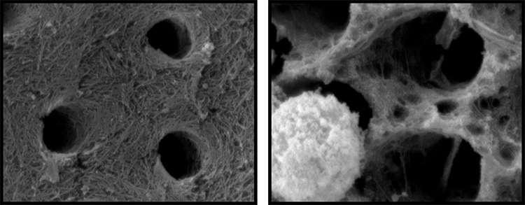 Les neutrophiles constituent à eux seuls 65 % des globules blancs du sang. Ici, des images de collagène — comme celui que l'on trouve dans la dentine — après 24 heures d'incubation avec des neurophiles. À droite, on observe la perte du réseau de fibrilles. © Russel Gitalis, Université de Toronto