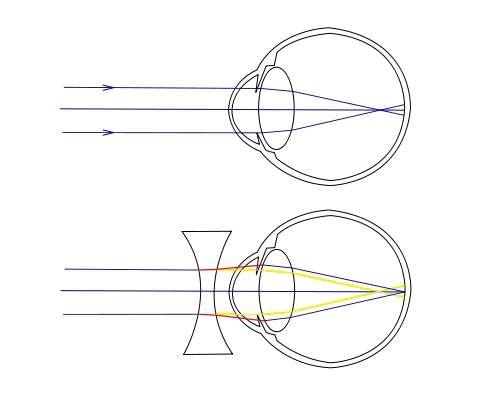 Ce schéma illustre les problèmes rencontrés par les personnes myopes. Dans l'image du haut, les rayons venant de l'infini convergent en un point situé en avant de la rétine, qui tapisse le fond de l'œil : la personne est myope. Grâce à une lentille divergente, placée devant l'œil dans la seconde image, le cristallin fait converger les rayons en un point situé précisément au niveau de la rétine. Le tracé avant correction est représenté en jaune. © A. Baris Toprak, Wikipédia, cc sa 1.0