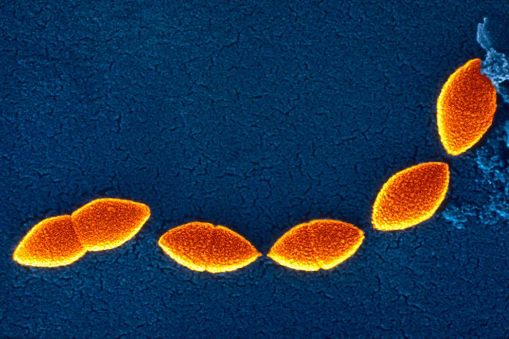 Streptococcus pneumoniae est le plus courant des agents responsables de la pneumonie. Il est souvent regroupé par paire, comme le montre cette image de microscopie. © Sanofi Pasteur, Flickr, cc by nc nd 2.0