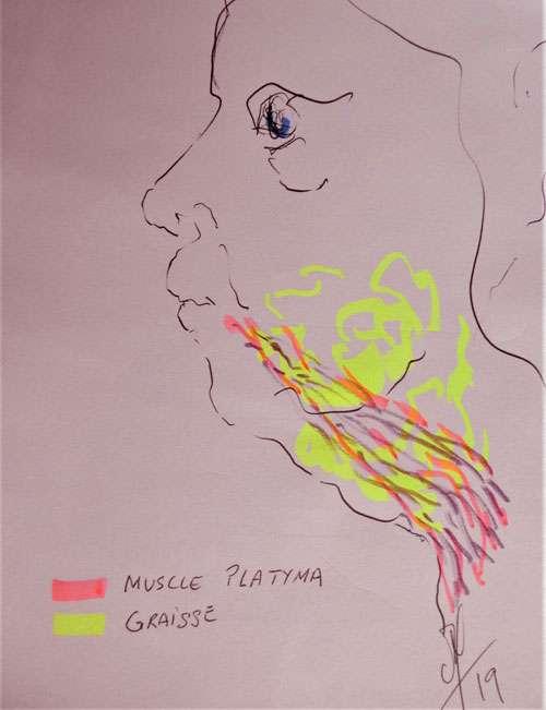La répartition de graisse en jaune et du muscle platysma en violet. © Dr Mitz, tous droits réservés