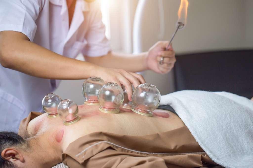 L'acupuncteur peut pratiquer l'acupuncture à l'aide d'aiguilles fines stérilisées, mais aussi par utilisation de la chaleur, de courant électrique ou encore de rayons lumineux. © manusapon, Adobe Stock.