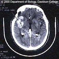 Tumeur du cerveau vue au scanner.