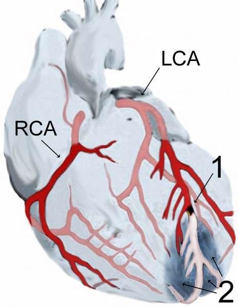 L'infarctus du myocarde, autrement connu sous le terme de crise cardiaque, se produit quand les artères coronaires droites (RCA) ou gauches (LCA) sont obstruées (1). De ce fait, le sang n'arrive pas dans la région numérotée 2, les cellules cardiaques meurent par manque d'énergie et le cœur ne peut plus battre correctement. © J. Heuser, Wikipédia, cc by sa 3.0