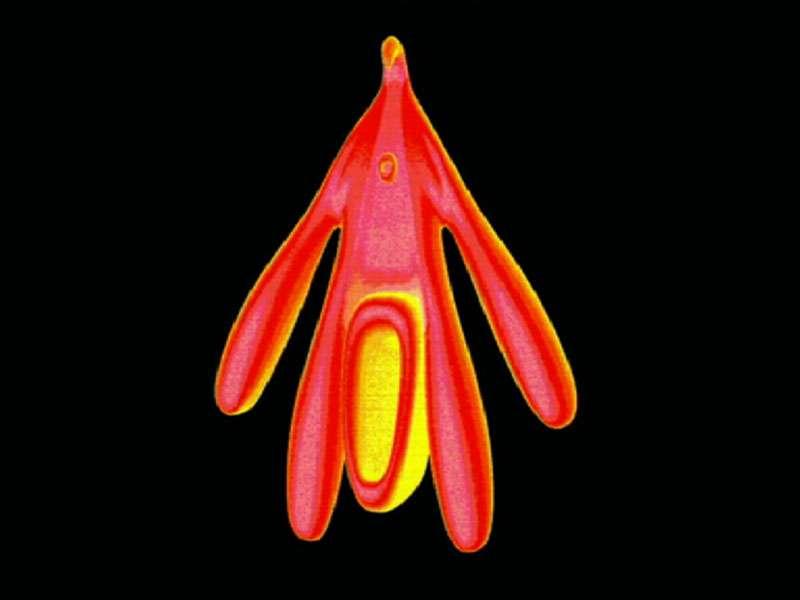 Image 3D du clitoris