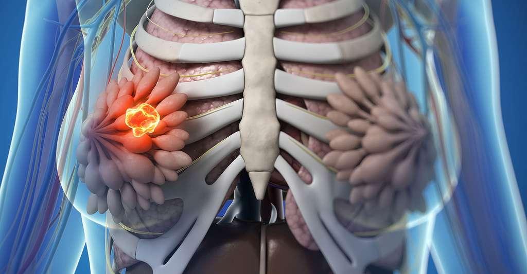 La ménopause peut se déclencher naturellement avant 40 ans, c'est la ménopause précoce. Mais elle peut aussi arriver après un traitement ou une opération, on parle alors de ménopause artificielle. © Sebastian Kaulitzki, Shutterstock