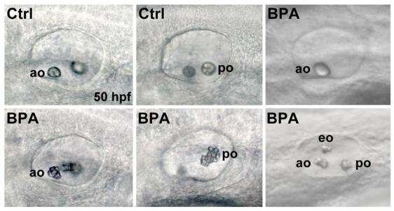 Les otolithes antérieurs et postérieurs des embryons traités au bisphénol A (BPA) comparés aux embryons contrôles (Ctrl) présentent des anomalies : un seul otolithe (en haut à droite), ou un otolithe surnuméraire (en bas à droite) ou des agrégations (en bas, centre et gauche). © BMC Developmental Biology