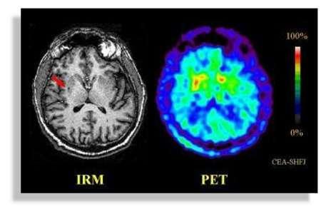 Une image du cerveau obtenue par IRM et par la tomographie à émission de positrons