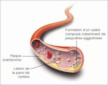 Obstruction d'une artère par l'athérosclérose. © bmsfrance.fr