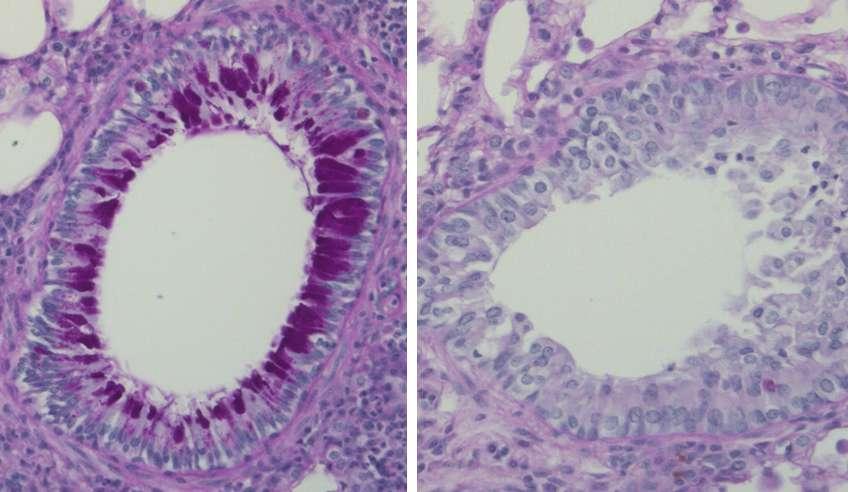 Visualisation au microscope de coupes de poumon de souris dans un modèle d'asthme avec une coloration à l'acide périodique et Schiff montrant une forte production de mucus (violet foncé) et un infiltrat de globules blancs autour des bronches dans le groupe contrôle (à gauche) mais pas dans le groupe vacciné (à droite). © Dr Eva Conde